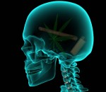 Cannabis brain caused by use of marajuana